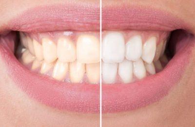 Theo bạn có nên tẩy trắng răng nhiều lần không?