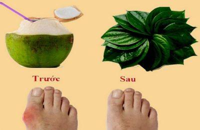 nước dừa và lá trầu chữa bệnh gút